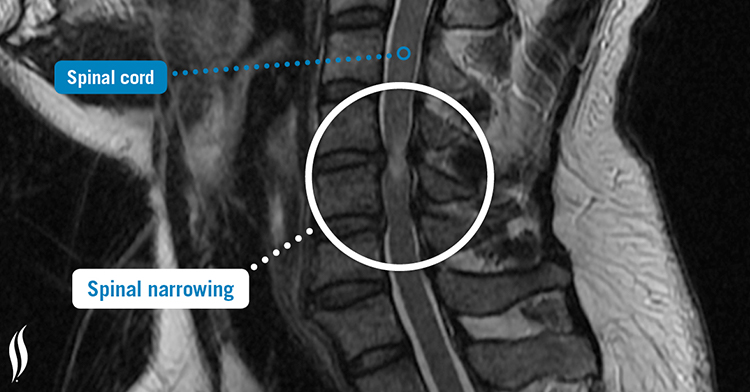 Spinal narrowing overview